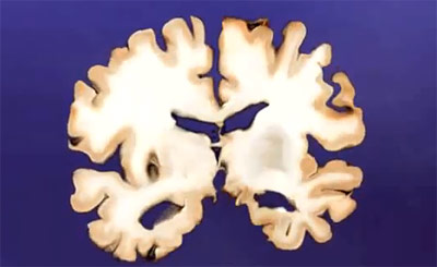 Geschrumpftes Gehirn bei Alzheimer