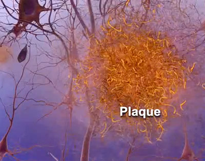 Amyloid-Plaques zerstören Gehirnzellen