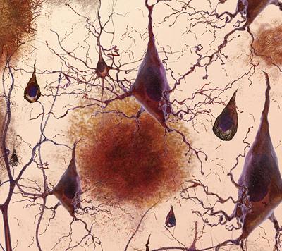 Amyloid-Plaques im Gehirn