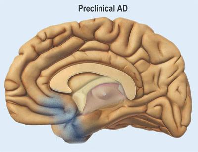 Präklinisches Alzheimer: In diesem Stadium fehlen die klassischen Symptome noch