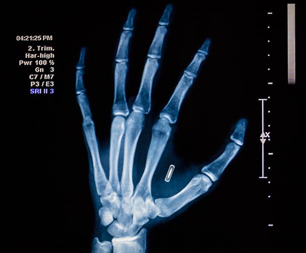 Dieses Röntgenbild zeigt einen zwischen Daumen und Zeigefinger implantierten RFID-Chip.