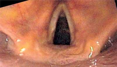 Endoskopisches Bild eines Kehlkopfes