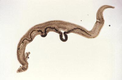 Pärchenegel Schistosoma