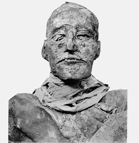Mumie von Ramses III.: Der Hals ist verdeckt