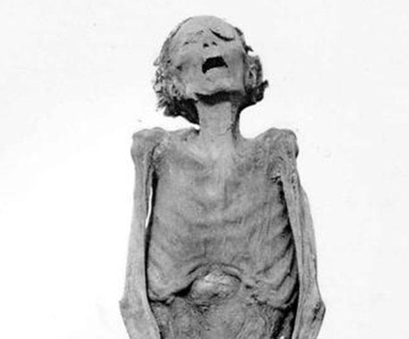 """Die Mumie """"Unknown Man E"""" - vermutlich Pentawer zum Selbstmord verurteilt?"""