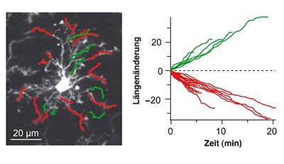 Mikrogliazellen ändern ihre Form