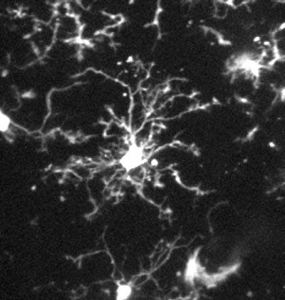 Mikrogliazelle in der Hirnrinde