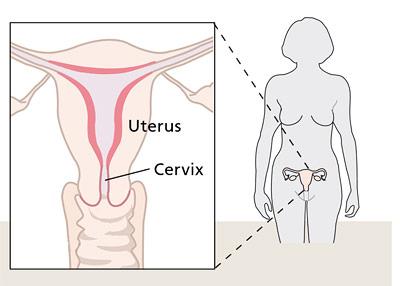 Das Zervixkarzinom entwickelt sich in der Schleimhaut des Gebärmutterhalses