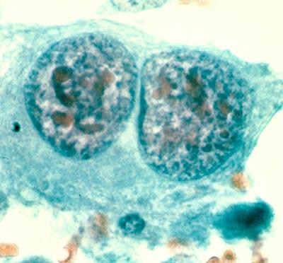 Knochenkrebs-Zellen