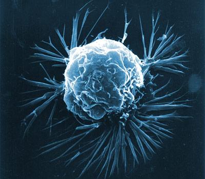 Brustkrebszelle