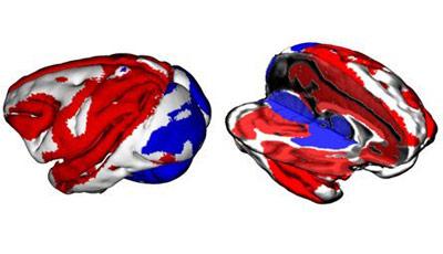 Kommunikation im Gehirn: Die roten Bereiche werden akiver, wenn im Hippocampus Ripples erzeugt werden.