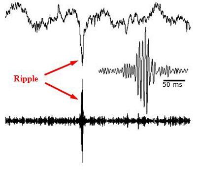 Ripples (Pfeile) im Hippocampus des Affen.