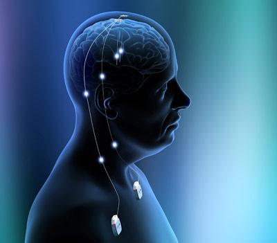 Strompulse hemmen die Epilepsie