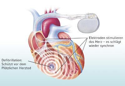Ein implantierbarer Defibrillator gibt nur dann einen Impuls, wenn das Herz aus dem Takt gerät.