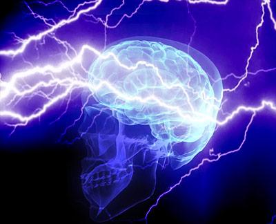 Migräne - Gewitter im Gehirn