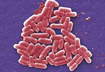 Der Darmkeim Escherichia coli ist gramnegativ und damit von Natur aus gegen klassisches Penicillin unempfindlich