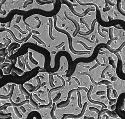 Erwärmte Nanopartikel und lösten beim Wurm eine Vermeidungsreaktion aus