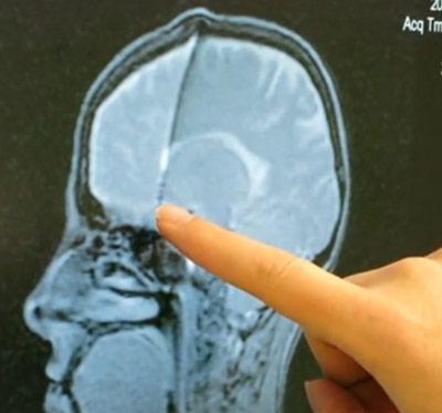 Lage der Elektrode zur Tiefen Hirnstimulation im Gehirn einer Magersucht-Patientin