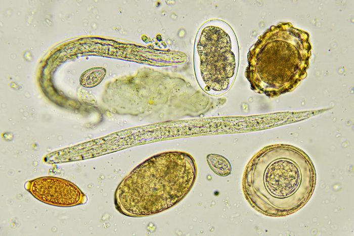 """<span class=""""img-caption"""">Parasiten wie diese Helminthen haben den Lauf der Evolution maßgeblich beeinflusst.</span> <span class=""""img-copyright"""">© jarun001/ istock</span>"""