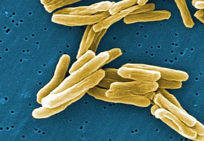 Elektronenmikroskopische Aufnahme von Mycobacterium tuberculosus