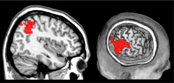 Gehirnscans zeigen: Der temporoparietale Übergang im hinteren Bereich des Gehirns signalisiert Großzügigkeit.