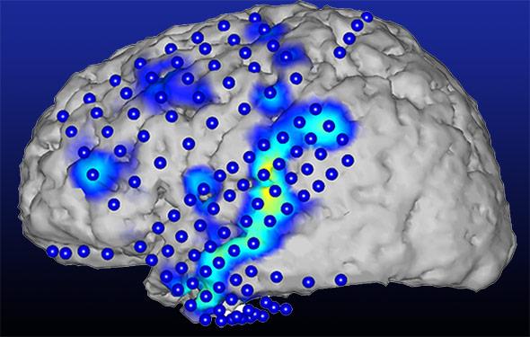 Aus den Aktivitätsmustern (blau/gelb) des Gehirns lassen sich die gesprochenen Wörter erkennen