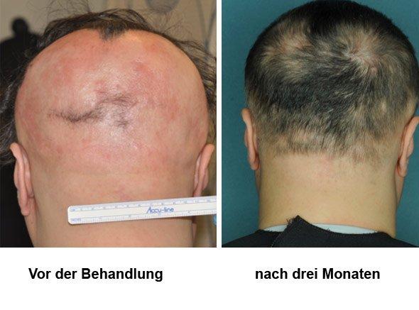 Molekül Stoppt Den Angriff Der Abwehrzellen Und Lässt Die Haare