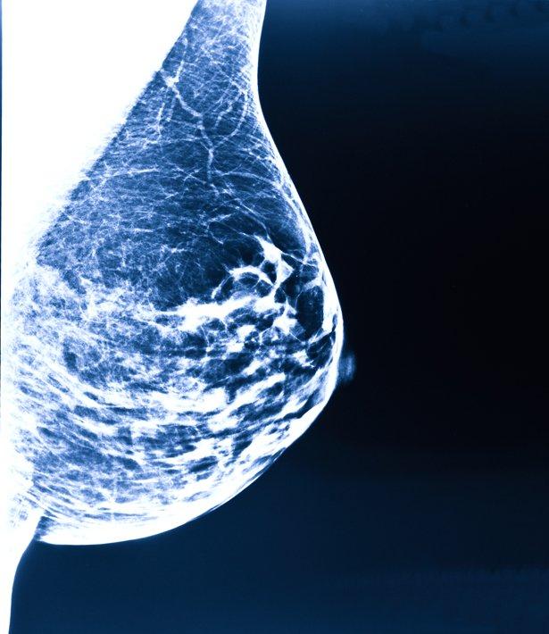 Aluminium Brustkrebs