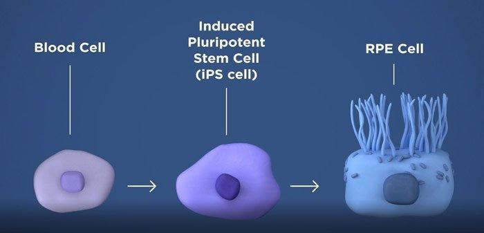 Netzhautgewebe aus Stammzellen