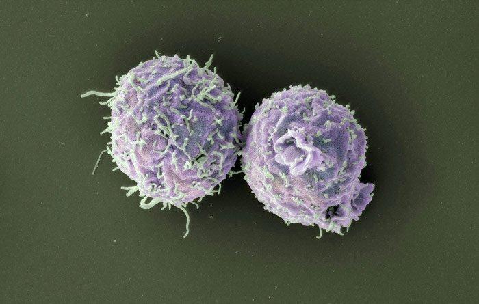 Modifizierte T-Zellen