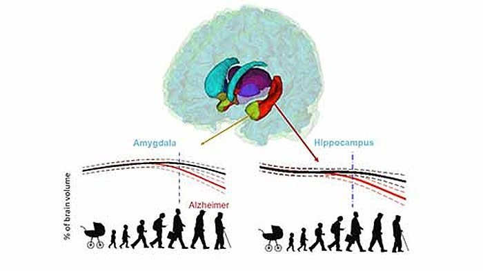 Hirnveränderungen bei Alzheimer