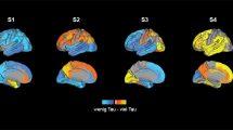 Alzheimer-Typen