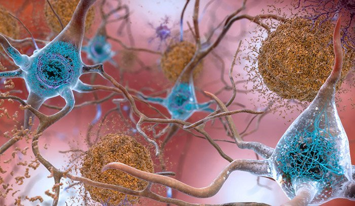 Amyloid-Plaques