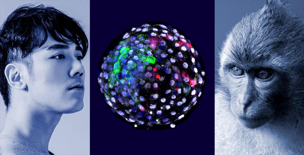 Chim-ren-Embryo-aus-Affen-und-Mensch