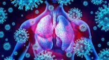 Lunge