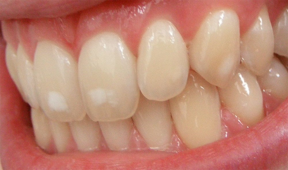Fluorid Zahnschmelz