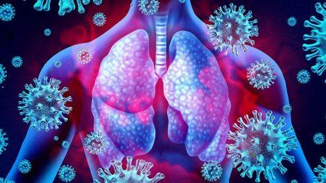 Coronavirus Lunge