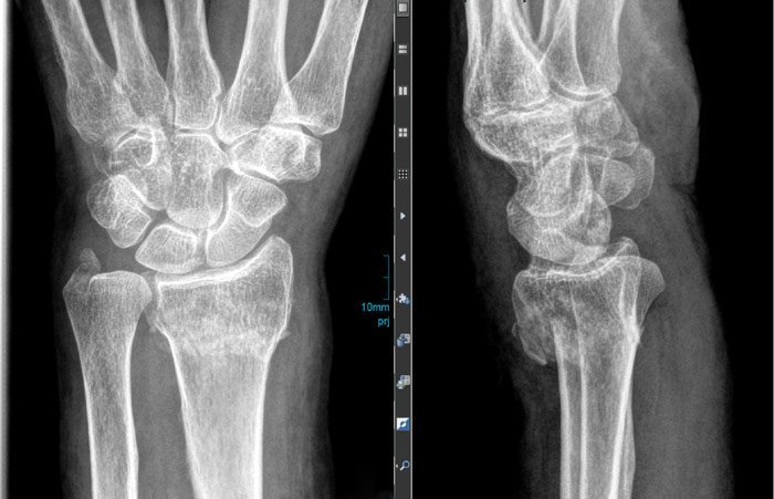 Knochenheilung