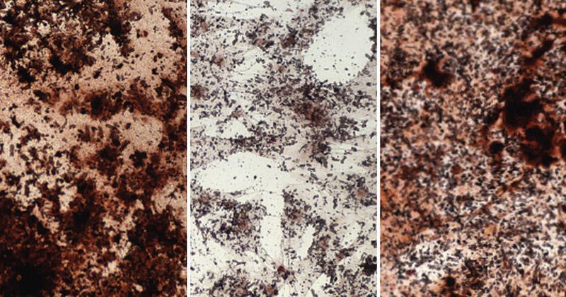 Knochenstammzellen