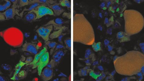 Umwandlung von Krebszellen