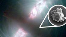 interstellarer Staub