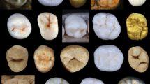 Zähne früher Menschen