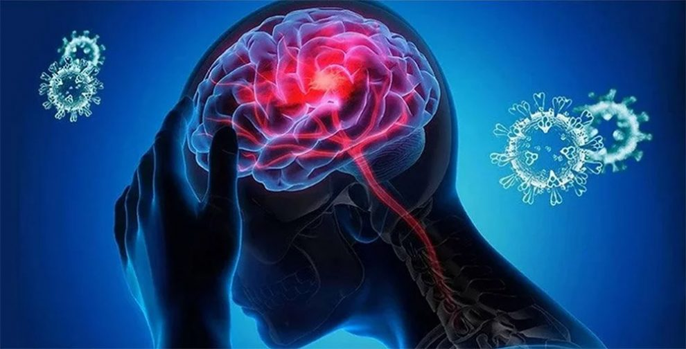 Neuro-Covid