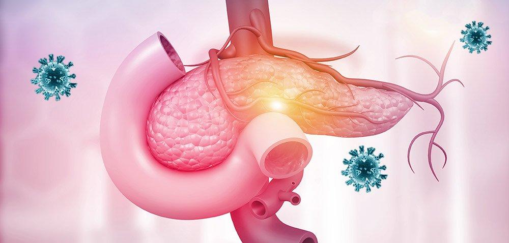 Warum bei Covid-19 der Blutzucker entgleisen kann - SARS-CoV-2 infiziert auch die insulinproduzierenden Zellen der Bauchspeicheldrüse - scinexx.de - scinexx | Das Wissensmagazin