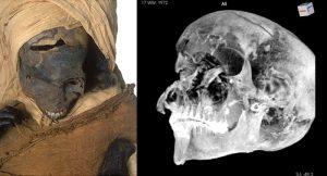 Kopf-CT
