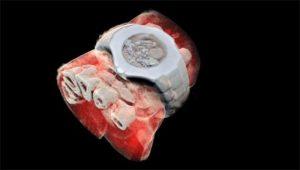 Röntgenaufnahme in Farbe