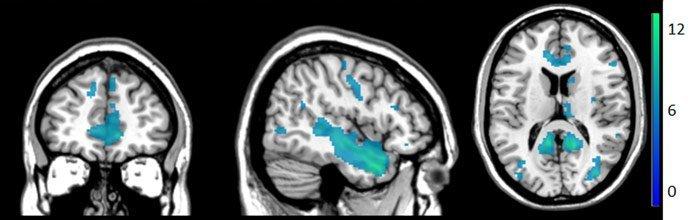 Hirnreaktionen auf Selbstberührung