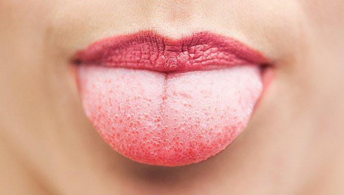 Zunge